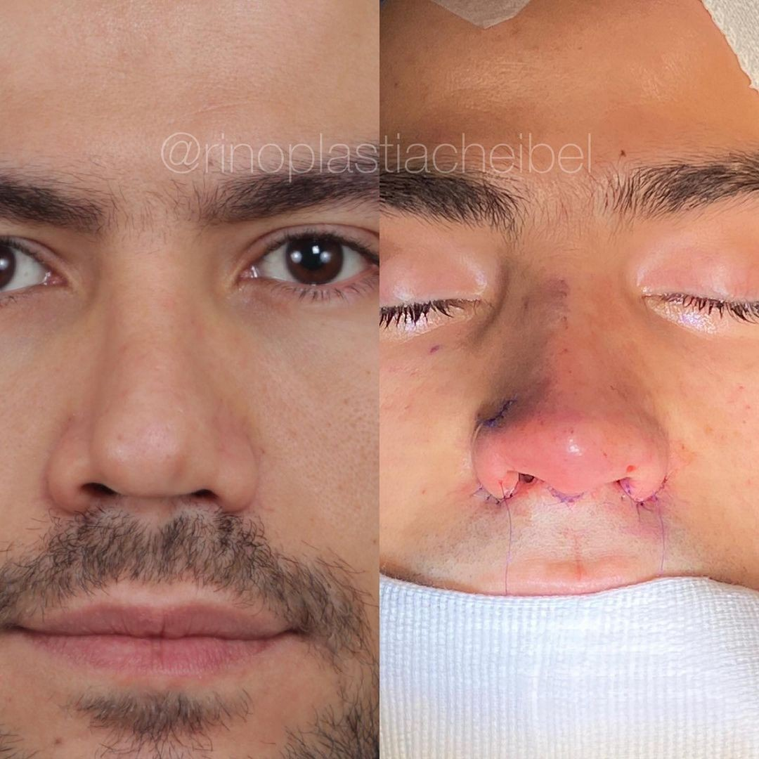 Jacqueline and Mariano show off the results of their rhinoplasty (Image: Reproduction/Instagram)