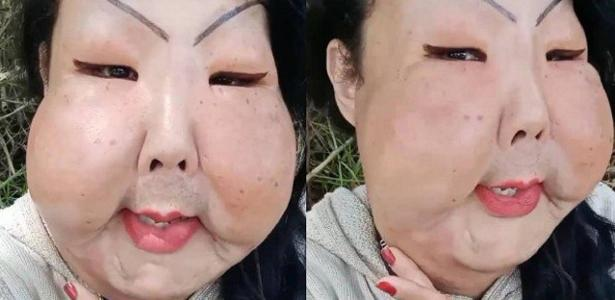 Woman suffers attacks after donating money for facial surgery
