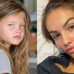 """A young girl elected """"the most beautiful in the world"""" reveals health problems and surgeries – World Health Organization"""